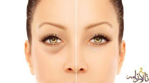 علت گودی وسیاهیزیرچشم وراههای بر طرف کردن سیاهی دور چشم